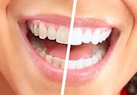 Contra-indicatii si riscuri pentru albirea dentara