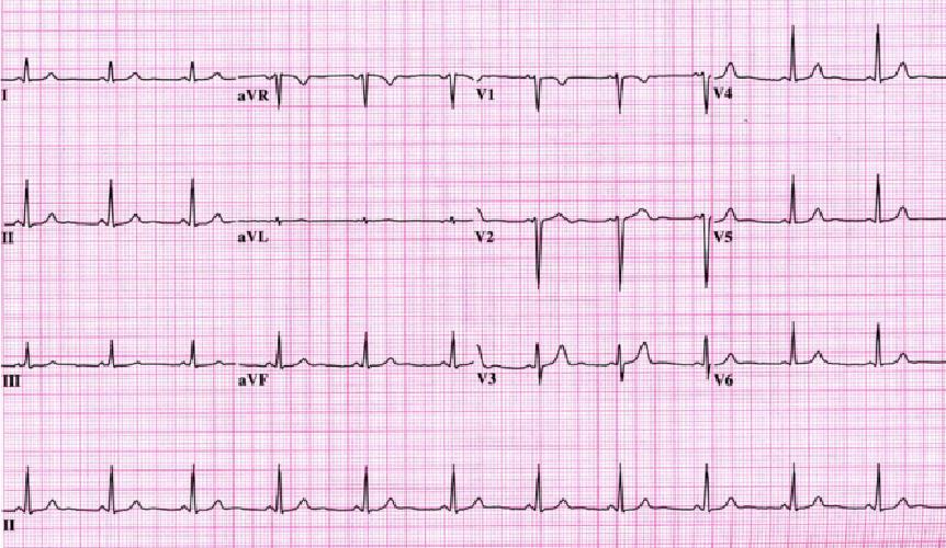 Tot ce trebuie sa stii despre un EKG: la ce sa te astepti in timpul testarii
