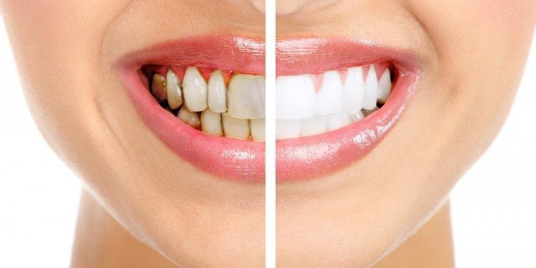 Tot ce trebuie sa stiti despre albirea dentara