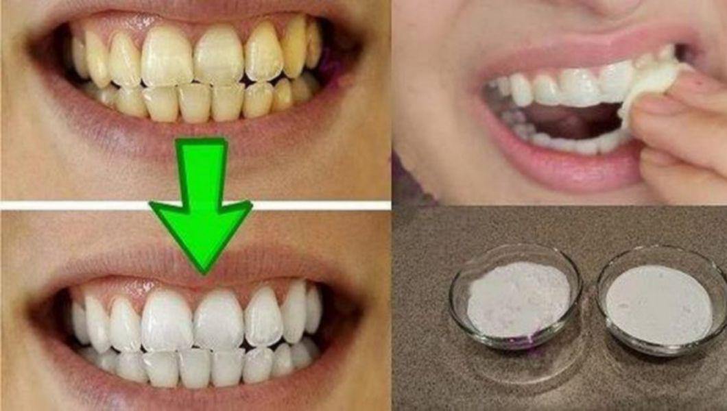 Cum se pot albi dintii?